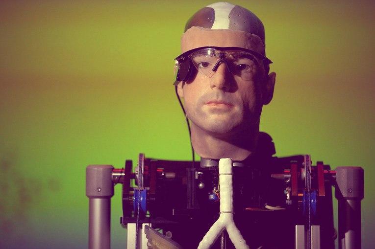 Рекс - первый бионический человек уже в Лондоне.